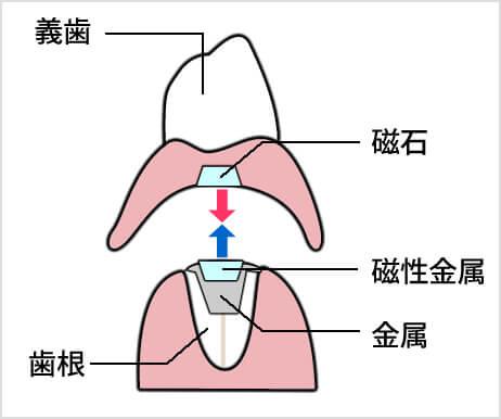 マグフィット(磁石式入れ歯)